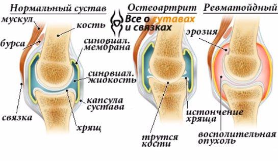 Причины и лечение воспаления коленного сустава