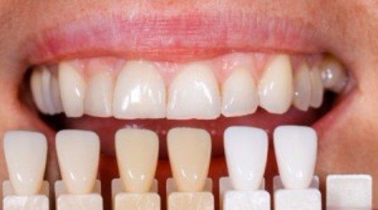 Современная клиника эстетической стоматологии в Москве