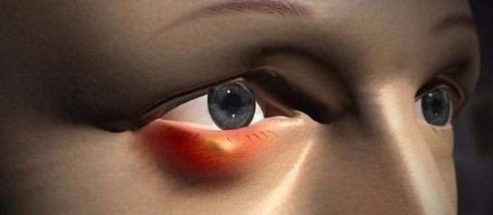 Симптомы ячменя на глазу и как его лечить