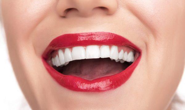 Белоснежная улыбка благодаря винирам на зубы