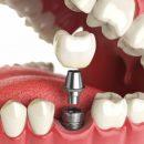 Качественное протезирование зубов в СПб с индивидуальным подходом к каждому пациенту
